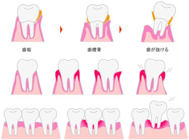 歯周病です。